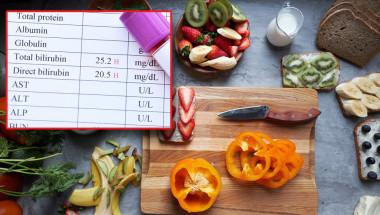 При висок билирубин диетата предотвратява усложненията