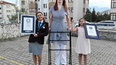Уникалната история на момиче с рядък синдром, което беше официално признато за най-високото в света